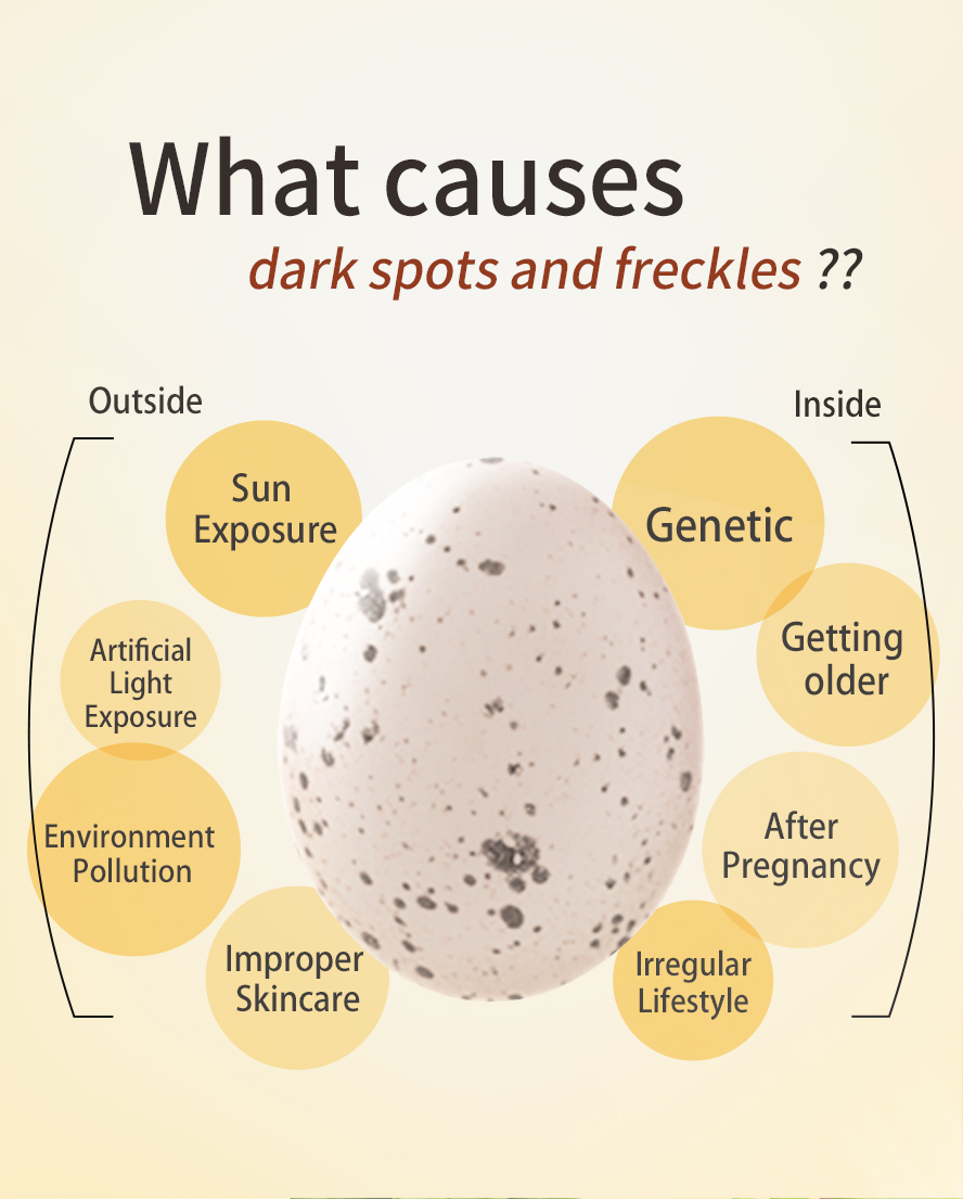 Too much exposure to the sun, hereditary factors, and hormonal imbalance cause freckles.