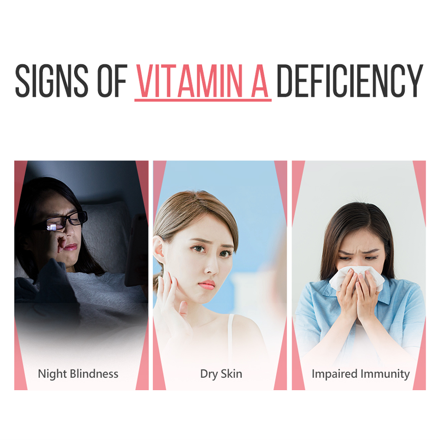 A lack of vitamin A can lead to a variety of problems , include night blindness and dry skin